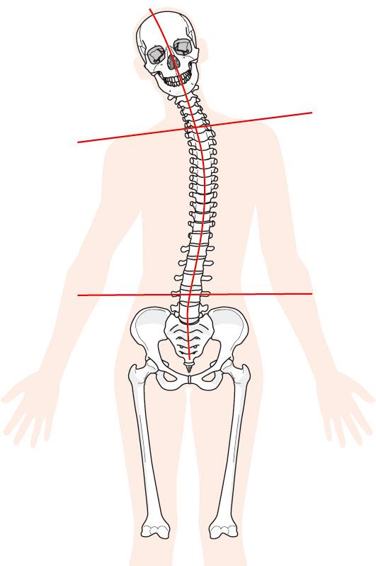 関節の歪み