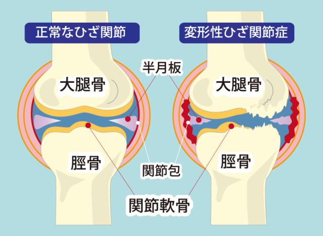 膝関節の画像
