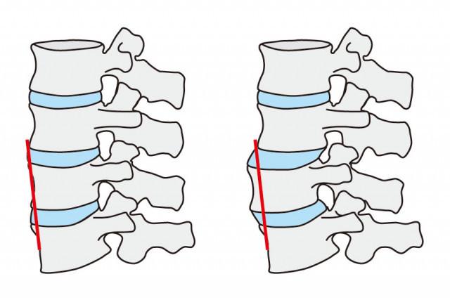 腰椎の画像